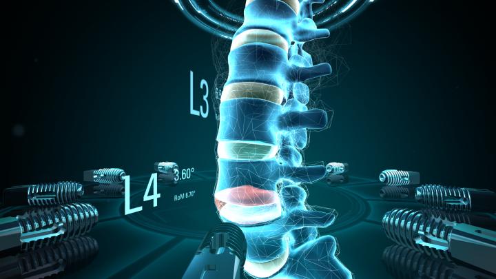 spine_0014